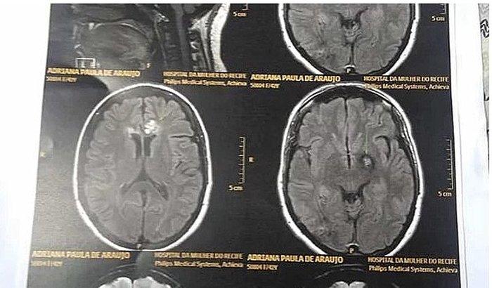 Última parcela da cirurgia dos tumores cerebrais da minha mãe