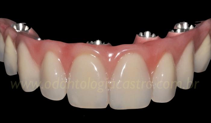 -Próteses dentárias sobre implantes para o Eric Carvalho Ator