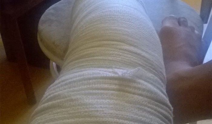 Cirurgia de ligamento do joelho esquerdo do Ridley